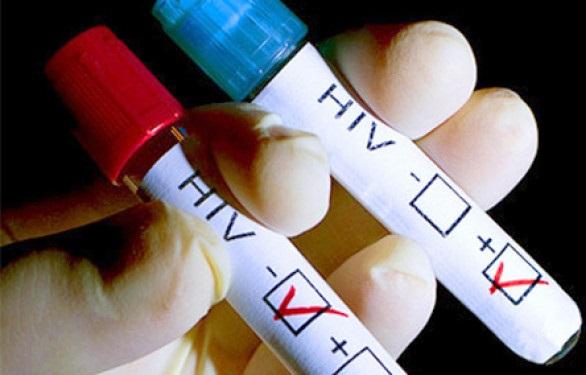 В крови людей обнаружен ключ к победе над ВИЧ