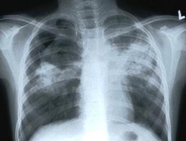 Две истории победы над туберкулезом