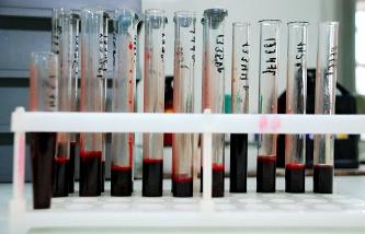 В Минздраве связывают распространение ВИЧ с употреблением спайсов