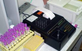 Заболеваемость вирусным гепатитом А в Приангарье превысила среднероссийский показатель в 2,2 раза
