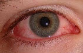 Офтальмогерпес — опасное проявление герпетической инфекции