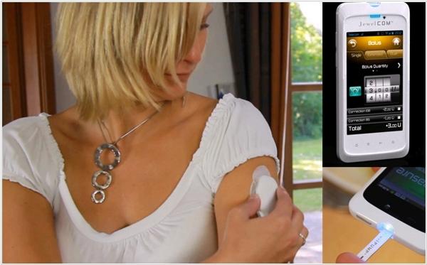 Инсулиновая помпа – современная помощь больным сахарным диабетом