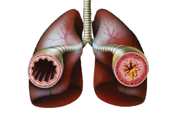 Хронические профессиональные заболевания: профессиональная бронхиальная астма