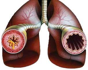 Лечение астмы без лекарств?