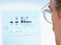 Университет Саутгемптона выяснил, как можно предотвратить развитие астмы