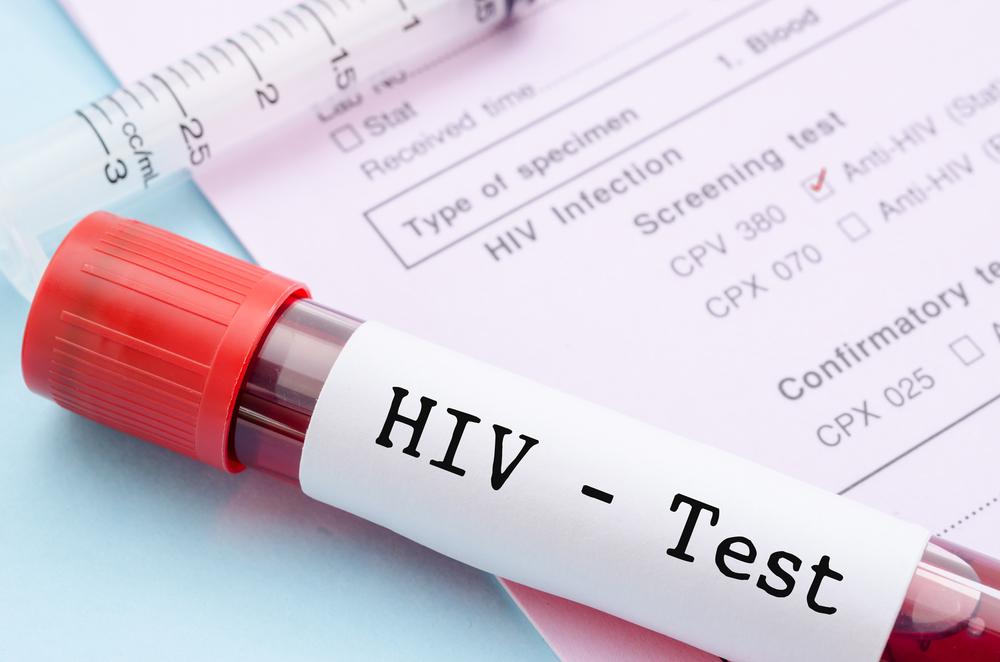 Самарцы смогут бесплатно и анонимно узнать свой ВИЧ-статус