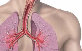 В чем причина развития тяжелой формы астмы?