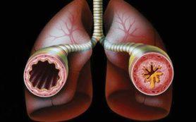Астма: найдено новое лекарство, которое помогает