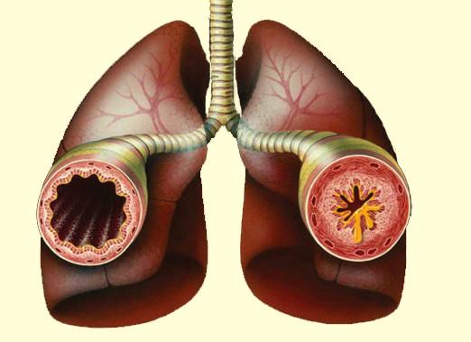 Народная медицина против астмы