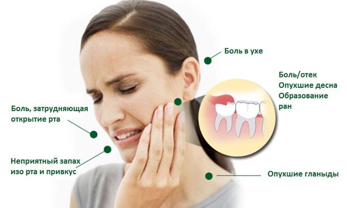 Зубы мудрости — как избежать проблем с ними