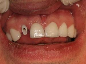Как правильно подготовиться к имплантации зубов в Нижнем Новгороде