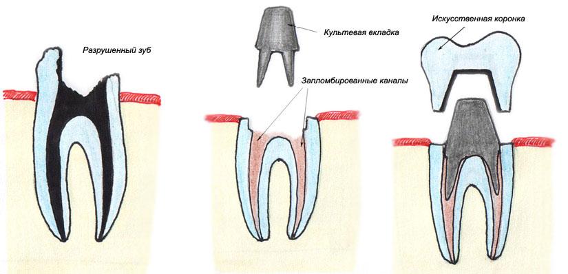 Стоматология. Вкладки