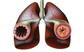 Медики рассказали, как избавиться от приступов астмы