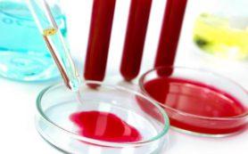 Медики научились предсказывать смерть здоровых людей от будущих инфекций