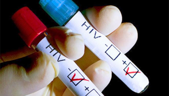 В России создадут реестр ВИЧ-инфицированных