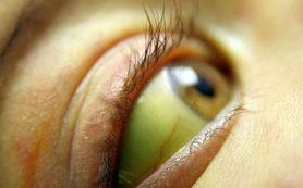 Роспотребнадзор: три семьи в Закамске заболели гепатитом А