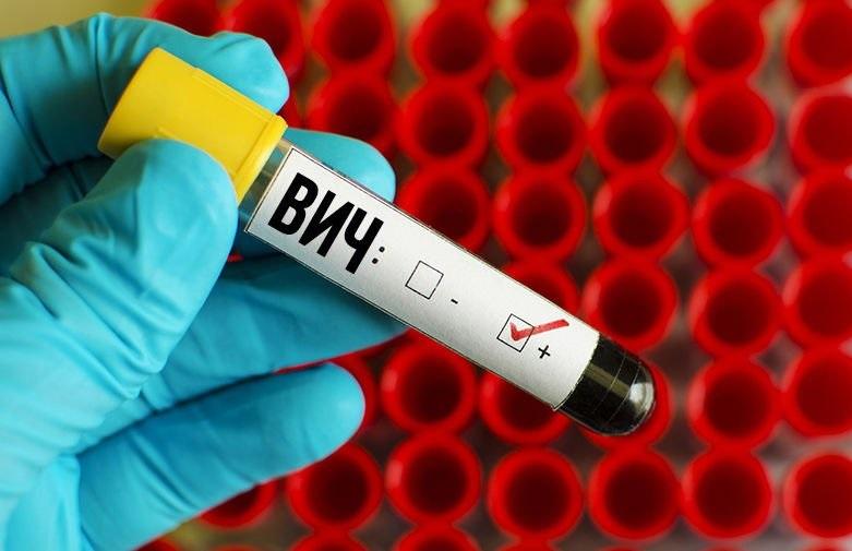 Россия увеличит расходы на борьбу с ВИЧ
