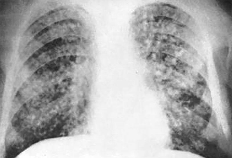 Уровень витамина D связан с развитием туберкулеза
