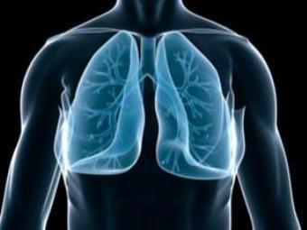 В Чехии создали модель для имитации хронических заболеваний легких