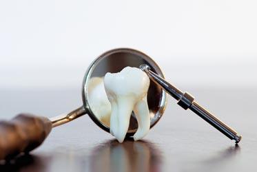 Особенности зубов мудрости