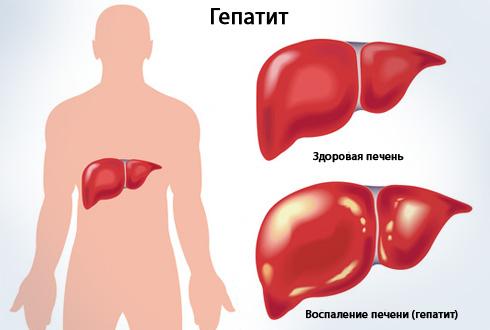 Гепатит: виды и симптомы