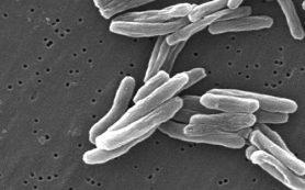 Ученые создали первую за 100 лет вакцину от туберкулеза