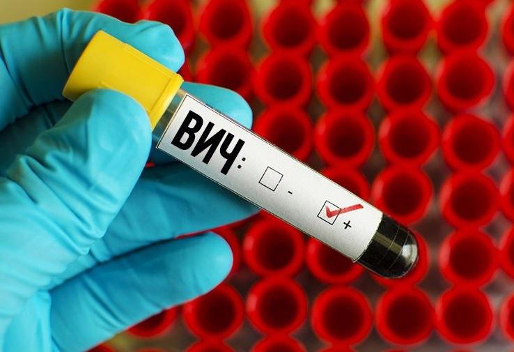 В России появился новый опасный ВИЧ