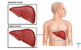 Что такое цирроз печени и как подобрать правильное лечение