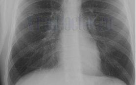 Рентгенограмма и рентгеноскопия легких. Что такое сегменты легкого?