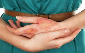 Как отличить псориаз от дерматита? Лечение псориаза