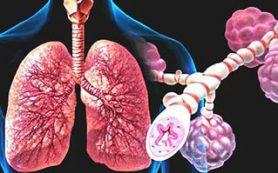 Как не заработать профессиональную бронхиальную астму