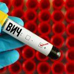 Обнаружена новая более агрессивная форма ВИЧ