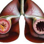 Бессонница – фактор отдаленного риска развития бронхиальной астмы