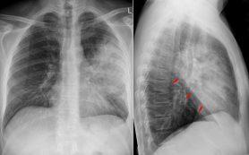 Систему дистанционного мониторинга состояния пациентов с пневмонией разработали в Красноярье