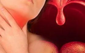 При каких заболеваниях воспаляется горло