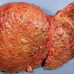 Цирроз печени - особенности и виды лечения
