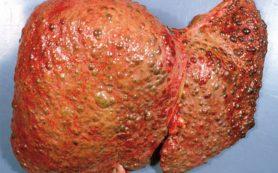 Цирроз печени — особенности и виды лечения