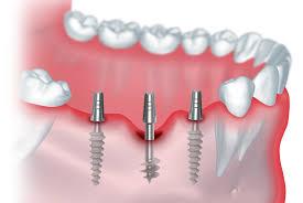 Имплантация зубов в Тюмени – выбирайте лучшее.