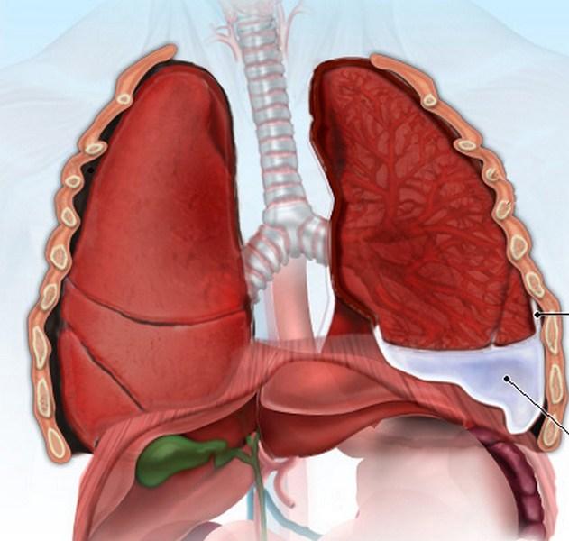 Причины и симптомы: плеврит