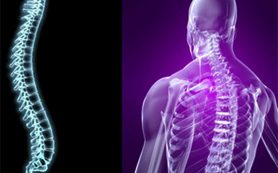 Дефанотерапия – эффективный метод лечения заболеваний спины
