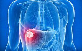 Хронический вирусный гепатит с минимальной степенью активности
