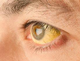 В Заречном шесть человек «подцепили» гепатит А