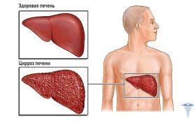 Сколько живет человек с гепатитом С, если не лечить