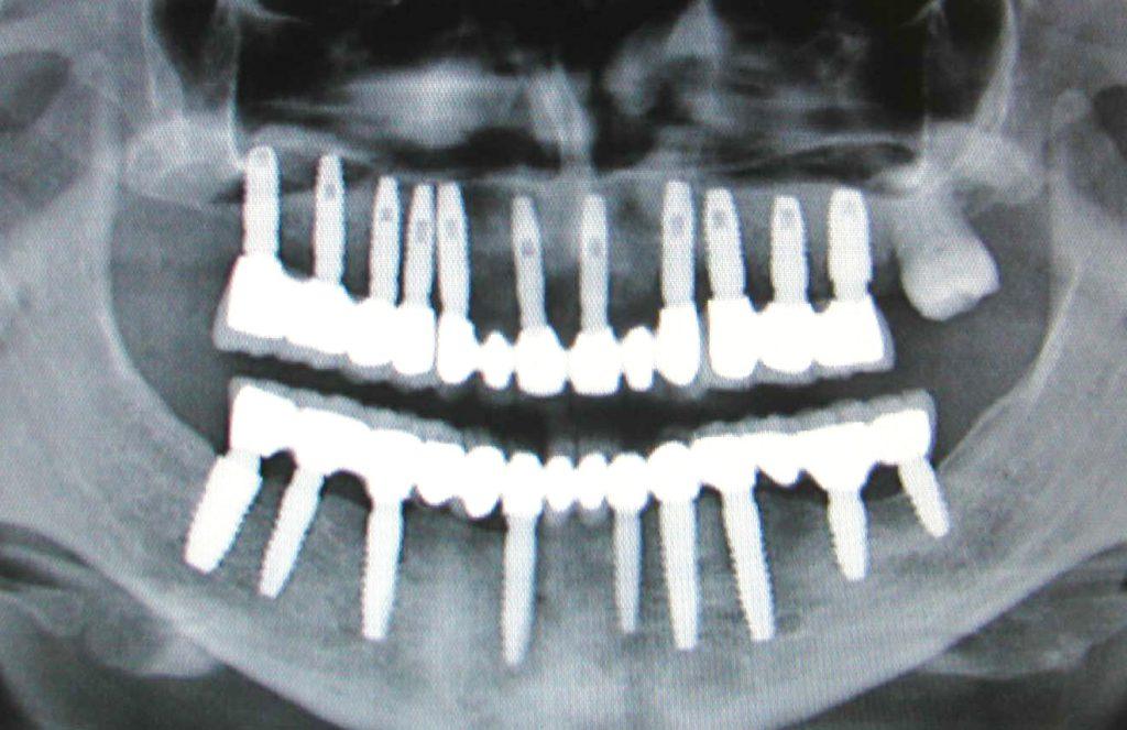 Что собой представляет имплантация зубов