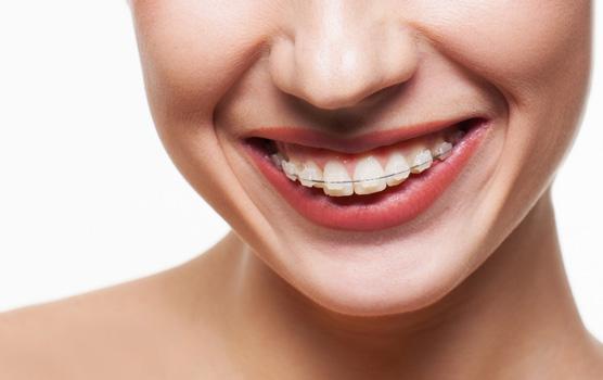 Услуги профессионального ортодонта