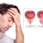 Аденома простаты: причины, симптомы и лечение