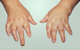 Заболеть ревматоидным артритом рискуют каменщики, бетонщики, младшие медсестры и санитарки
