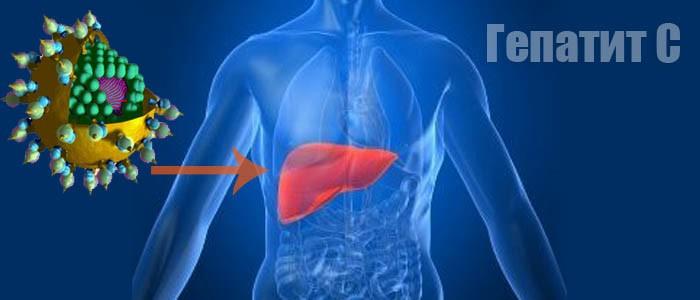 Гепатит С – симптомы, диагностика и лечение