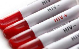 Геном ВИЧ обрел форму