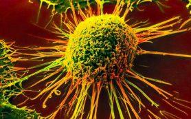 В Индии онкозаболевания назвали наказанием для грешников